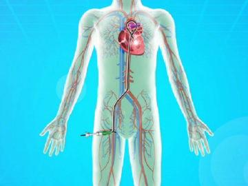 心臓カテーテル検査を受ける小児への援助